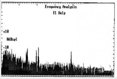 An example of multifrequency spontaneous otoacoust