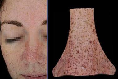 Emage Medical Image Pro II, skin pores. Courtesy o