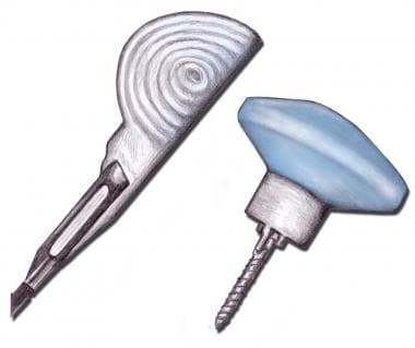 Cook-type screw-tip intraosseous needle (Sur-Fast
