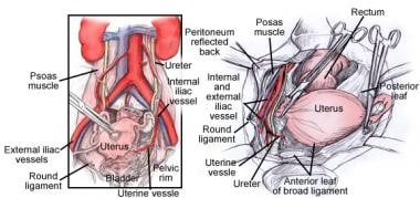 Relation of the uterine artery to the ureter durin
