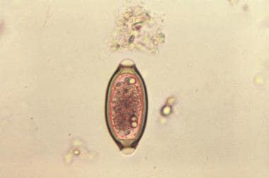 """Egg from the """"human whipworm"""". Courtesy of the CDC"""