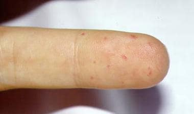 Telangiectasia of the finger.