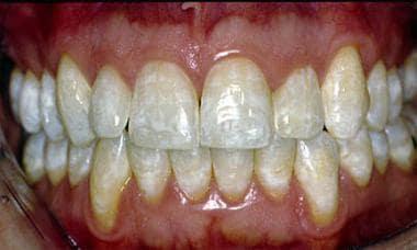 Mild dental fluorosis causing mottled white intrin