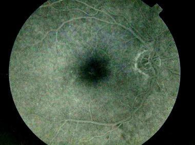 Fluorescein angiogram showing a central window def