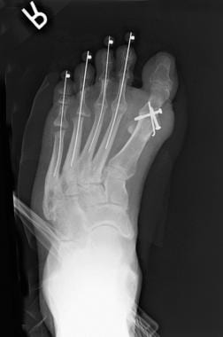 Postoperative radiograph show arthrodesis.