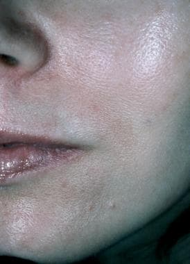 Photograph after collagen injection.