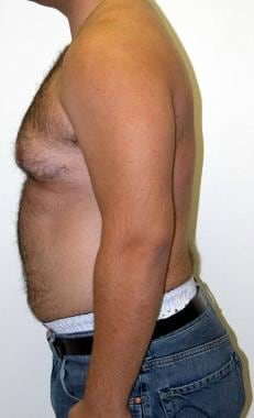 Preoperative gynecomastia patient. Note the enlarg