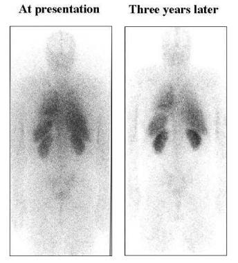 Progression of amyloid deposits in a patient with