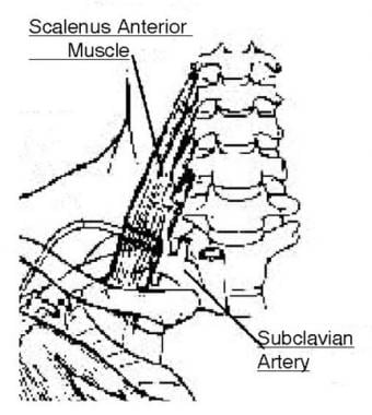 The anatomy of the subclavian artery in the thorac