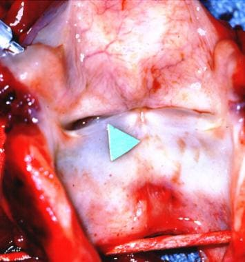 A surgical specimen after laryngectomy. The arrow