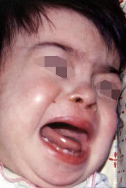 Hypodontia in patient with Down syndrome. Image co