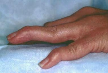 Rheumatoid changes in the hand. Photograph by Davi