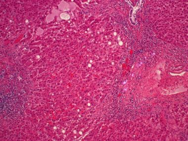 Cross-polarization of a section of liver in an ind