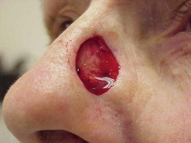 A deep surgical wound on the lateral nasal sidewal