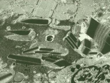 Mitochondrial myopathy, electron micrograph. Many