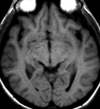 T1-weighted magnetic resonance image demonstrates