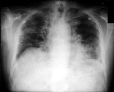 Nitrofurantoin lung. Scattered areas of reticular
