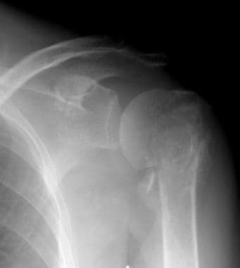 Radiograph of the proximal humerus in a patient wi
