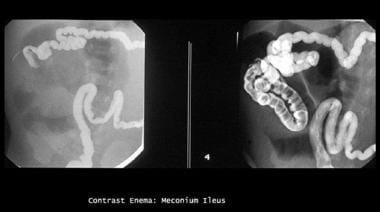 Enema study shows microcolon and contrast material