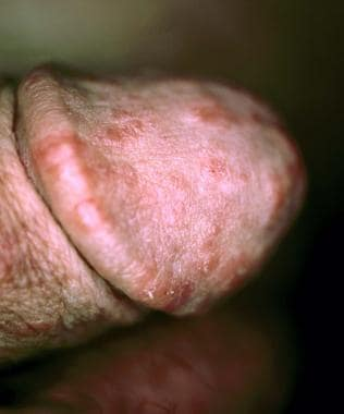 Scabies (Image courtesy of Hon Pak, MD)