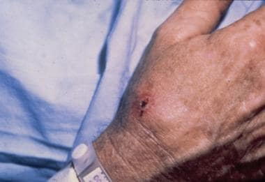Ulceroglandular type of tularemia on the hand. Cou