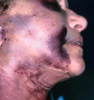 Complications of facelift surgery. Major hematoma