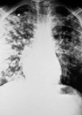 High-altitude pulmonary edema (HAPE). Initial pres