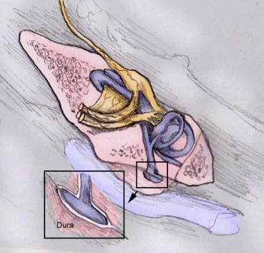 Extradural location of the endolymphatic sac