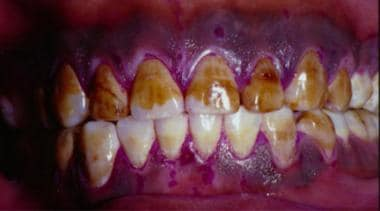 Severe fluorosis of the teeth.