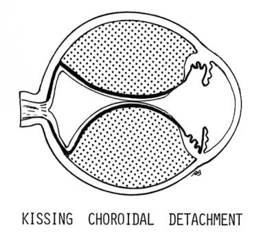 Kissing choroidal detachment. When the lobes of th