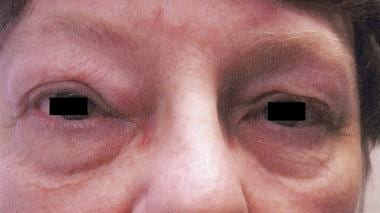 Upper and lower eyelid edema in blepharochalasis s