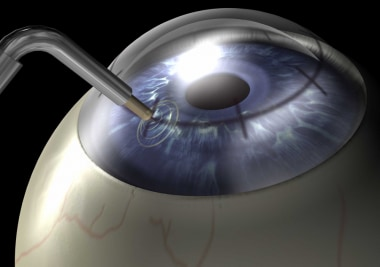 Hyperopia, conductive keratoplasty. ViewPoint with