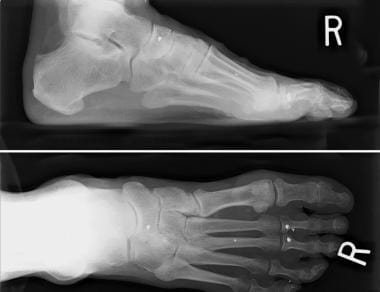Preoperative radiograph shows hypermobile first ra