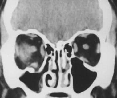 Coronal CT scan (soft tissue window) showing right