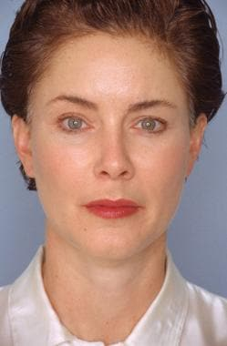 Subperiosteal facelift. After. Anteroposterior vie