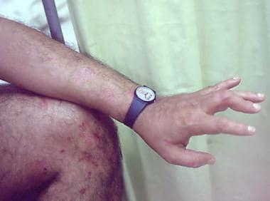 Asymmetrical arthritis pattern of psoriatic arthri