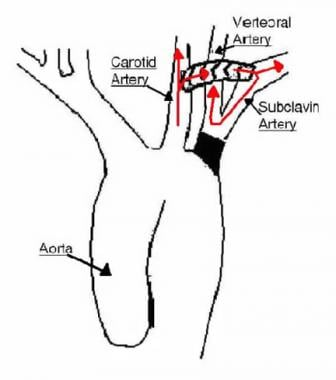 Spinal Column   Anatomy  26 Physiology also Fish jaw additionally 8261 further 424673 Treatment besides Gills. on bony diagram
