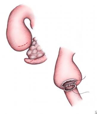 Side-to-side duodenoduodenostomy.
