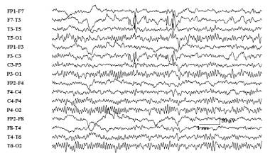 Benign rolandic epilepsy associated with typical c