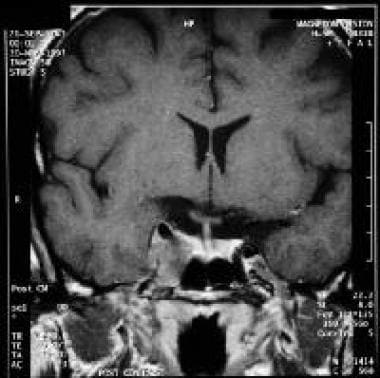 cavernous sinus syndromes: overview, clinical presentation, Cephalic Vein