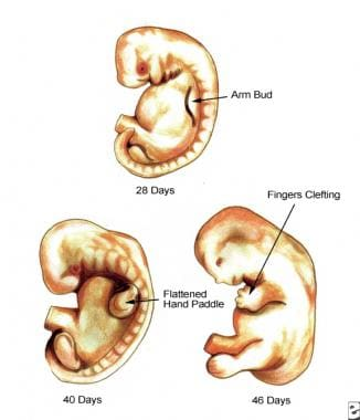 Developing embryo at 28 days, 40 days, and 46 days
