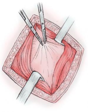 Transversalis fascia and peritoneum are grasped wi