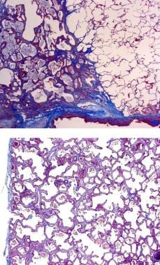 A) Typical histologic finding of spatial heterogen