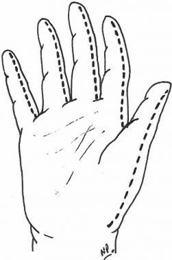 Diagrammatic representation of escharotomy incisio