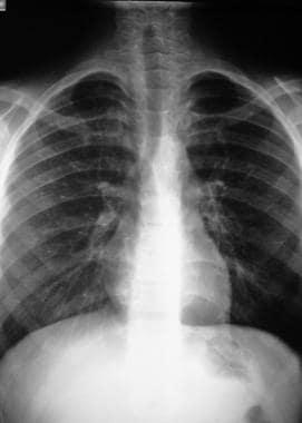 High-altitude pulmonary edema (HAPE). Improvement
