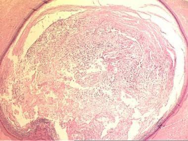 Cyst containing keratinous material (hematoxylin a