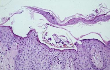 In routine scabies, a single mite is seen. Eosinop