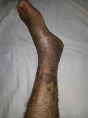 Postphlebitic limb in a Behçet disease patient. Co