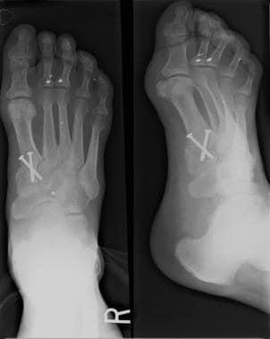 Postoperative radiograph shows arthrodesis of firs