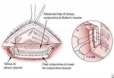 The flap is advanced and the upper tarsus sutured